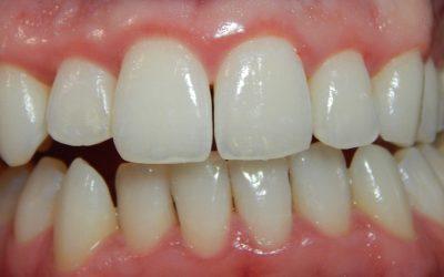 A fogínygyulladás oka, kialakulása, tünetei és kezelése