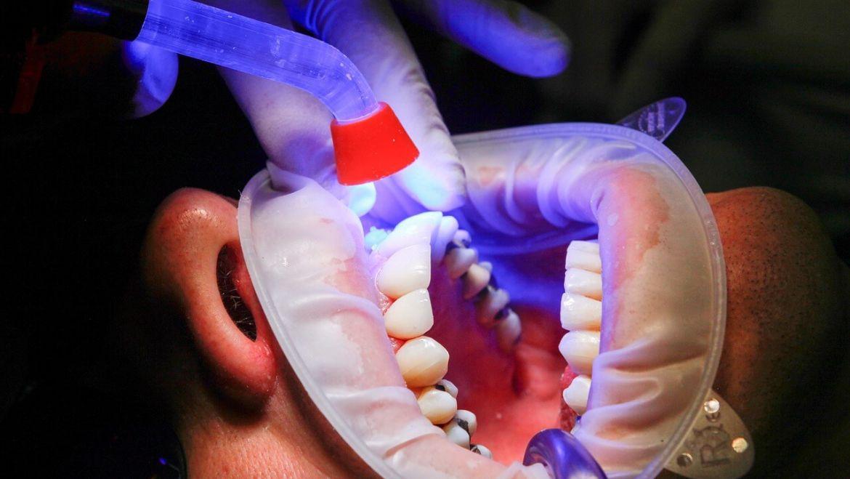 dohányzás után fáj egy foga hogyan lehet leszokni a homár széna dohányzásáról
