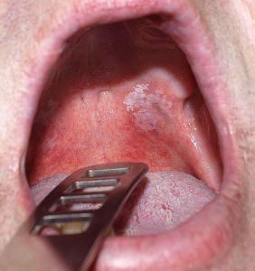 hogyan kezeljük a nyelv vörös foltját vörös foltok az arcon demodikózis
