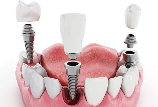 Valósak-e a fogimplantátum hátrányaival és veszélyeivel kapcsolatos félelmek?