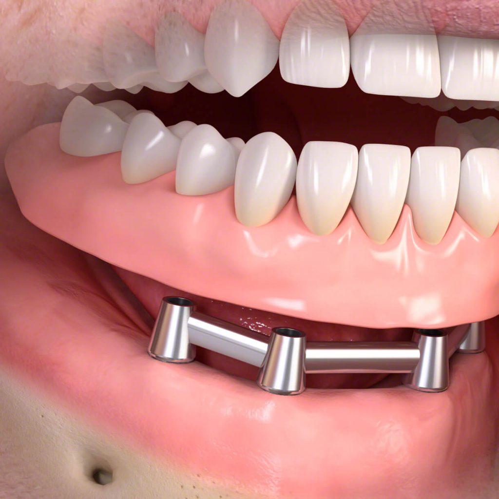 A fixfogsor lelke a rögíztésért felelős mini implantátum