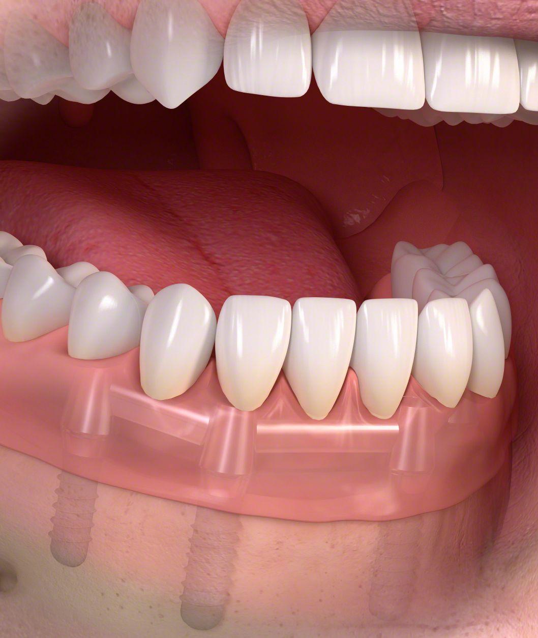 implantációs fogpótlás