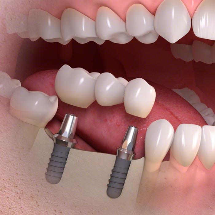 implantációs hídpótlás