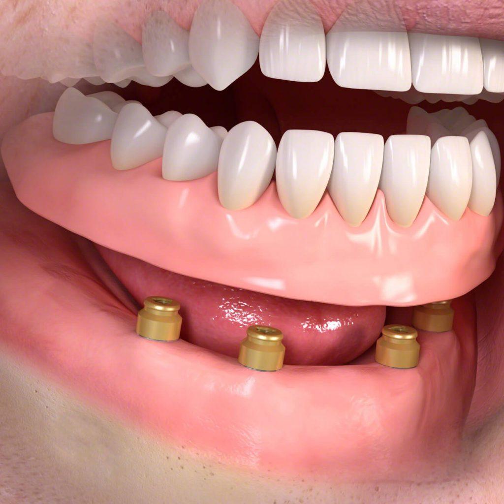 A kivehető fogsor implantátumokkal is rögzíthető. Így még tartósabb a kivehető fogpótlás.