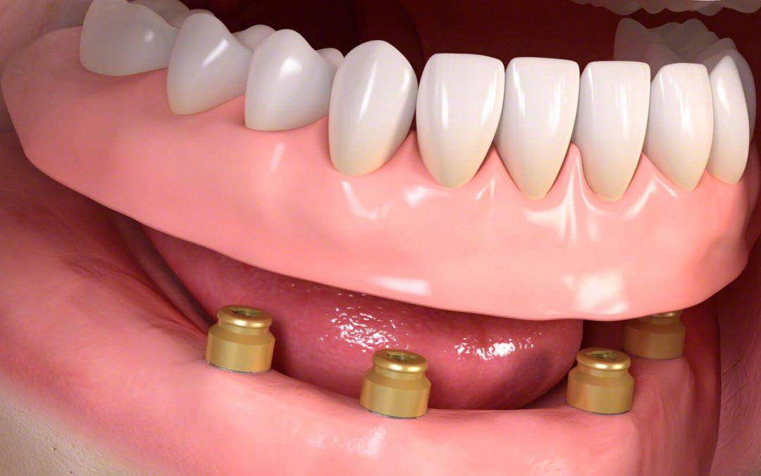 Kivehető fogsor rögzítése, fajtái és előnyei