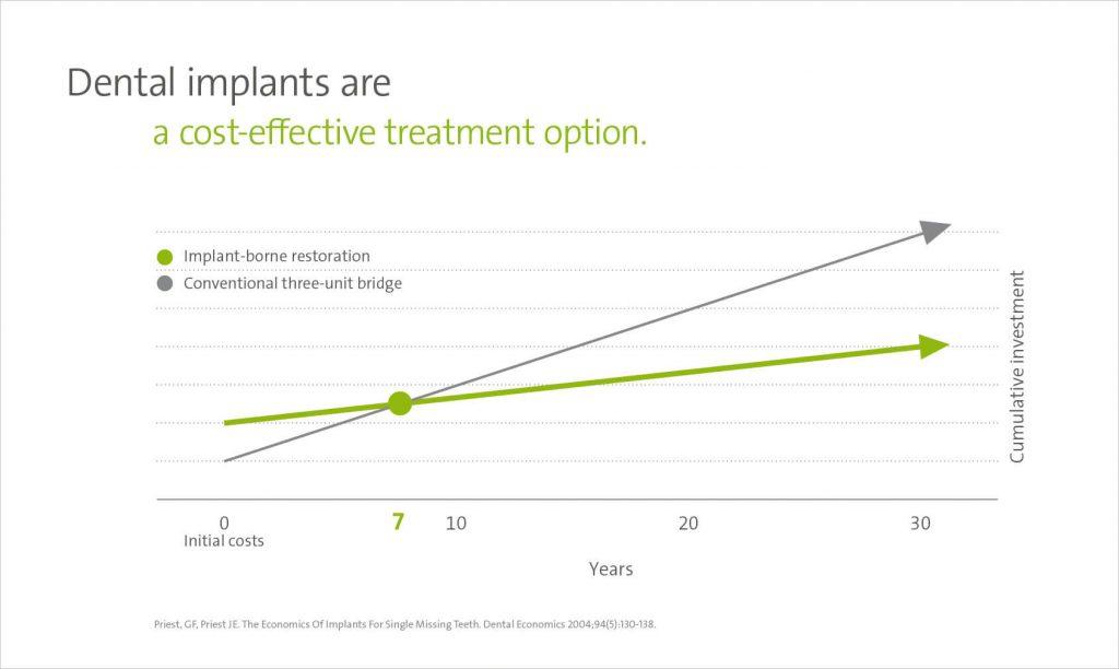 A Straumann implantátum árak valójában nem magasak: a fogbeültetés árak 7 év után megtérülnek.