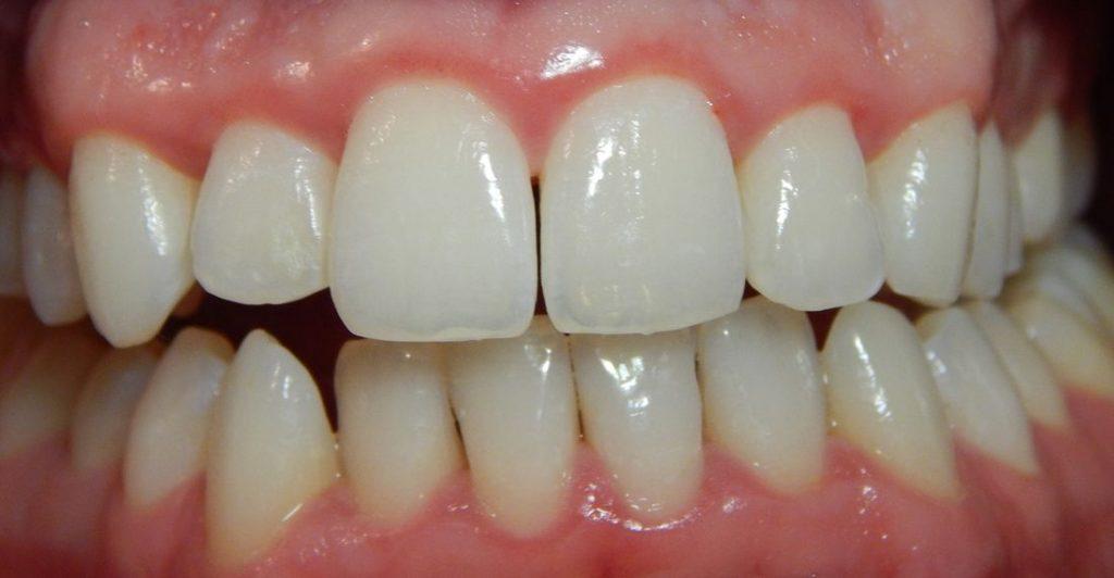 fogínygyulladás