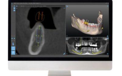 Navigált sebészet az implantológiában