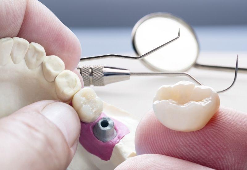 Fogkorona illesztése előzetesen beültetett fogimplantátumra
