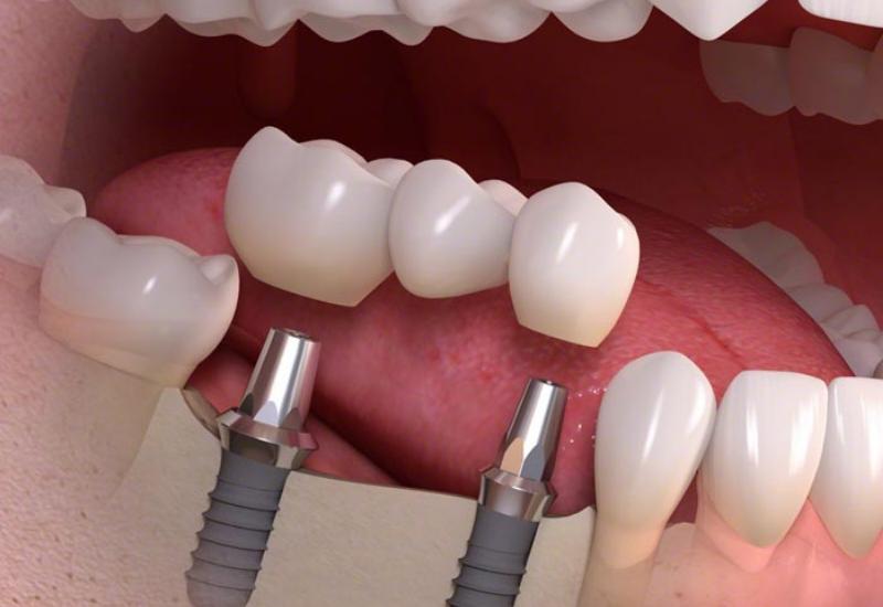 Foghíd implantátumokra